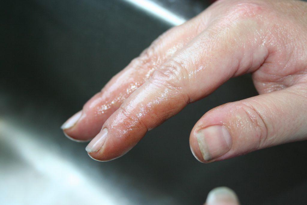finger stain ~ Lifeofjoy.me